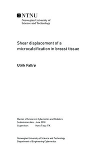 Shear displacement of a microcalcification in breast tissue