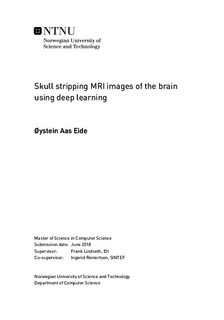 Skull stripping MRI images of the brain using deep learning